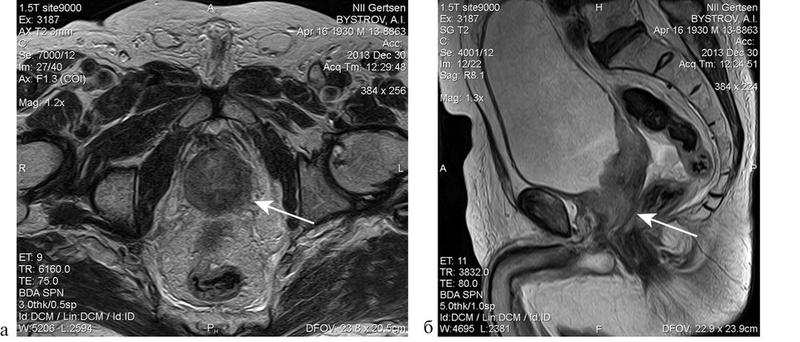 Рак на снимке МРТ