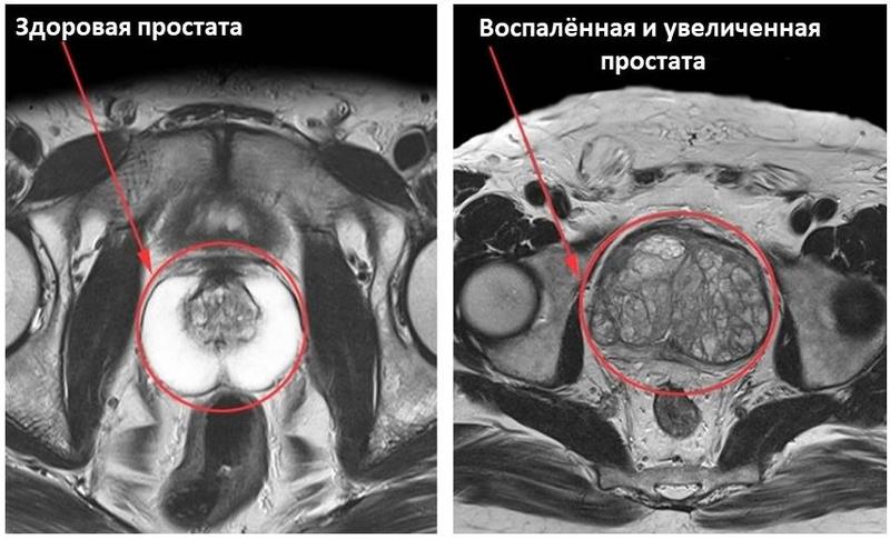 МРТ простаты здорового и больного человека