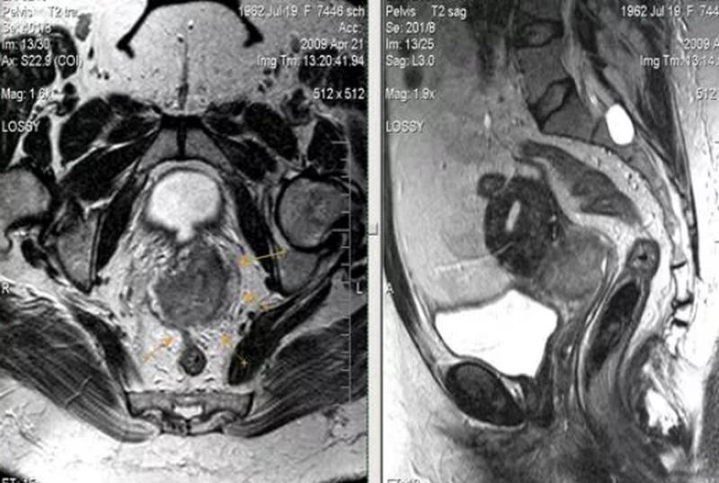 Рак шейки матки на снимке МРТ