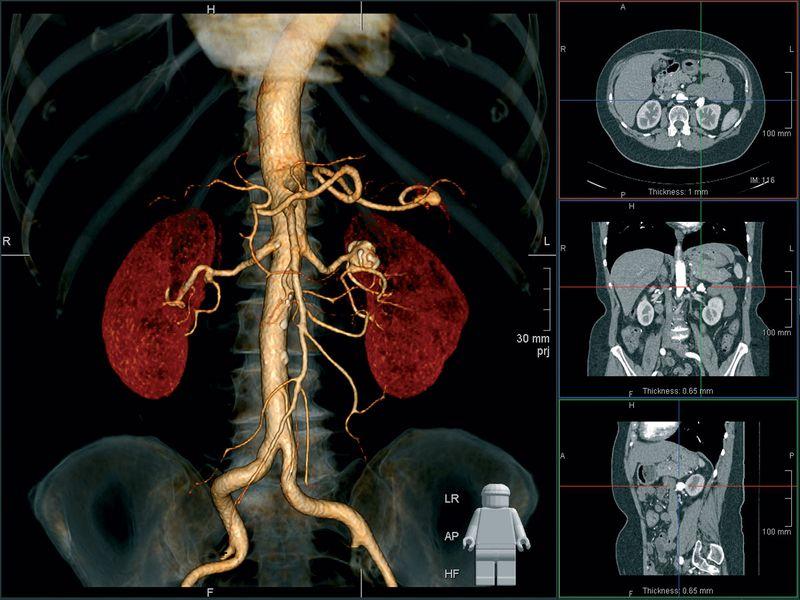 МРТ почек с контрастом в 3D