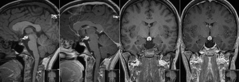 МРТ аденома гипофиза