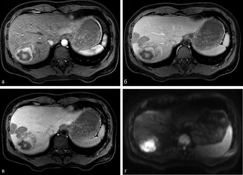 МРТ органов брюшной полости при аденоме