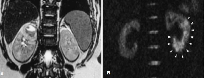 Абсцесс и зона ишемии при инфаркте почки