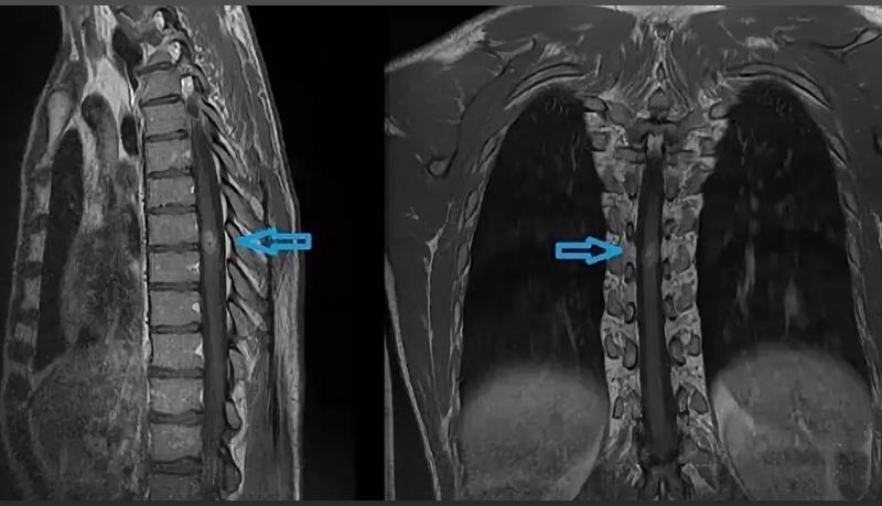 Опухоль спинного мозга на МРТ