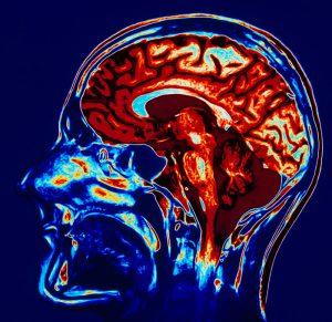 МРТ головного мозга: что это такое, что показывает томография головы