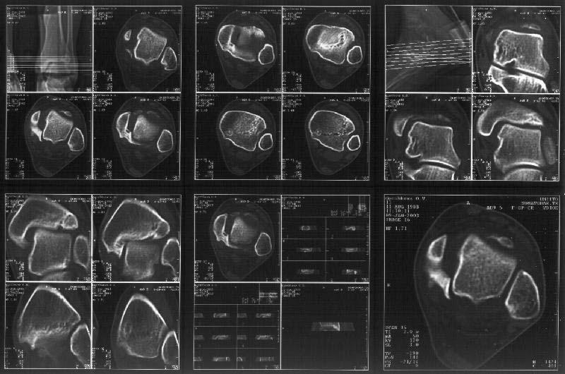 Что такое МРТ и КТ голеностопного сустава и что показывает: показания и подготовка