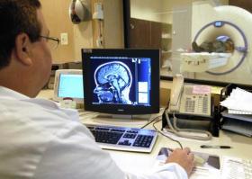 Что показывает МРТ головного мозга человека. МРТ головы