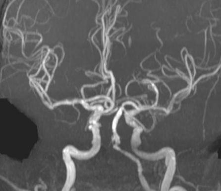 mr-angiografiya-s-kontrastom