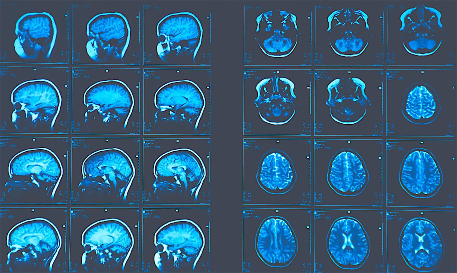 mrt-struktur-golovnogo-mozga