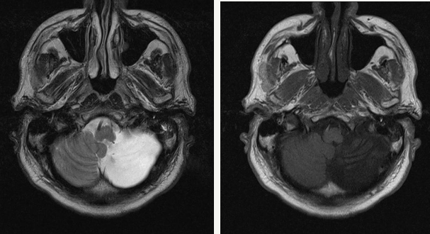 Почему болят мышцы живота при беременности thumbnail