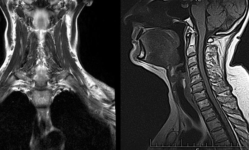 МРТ снимок шейного отдела
