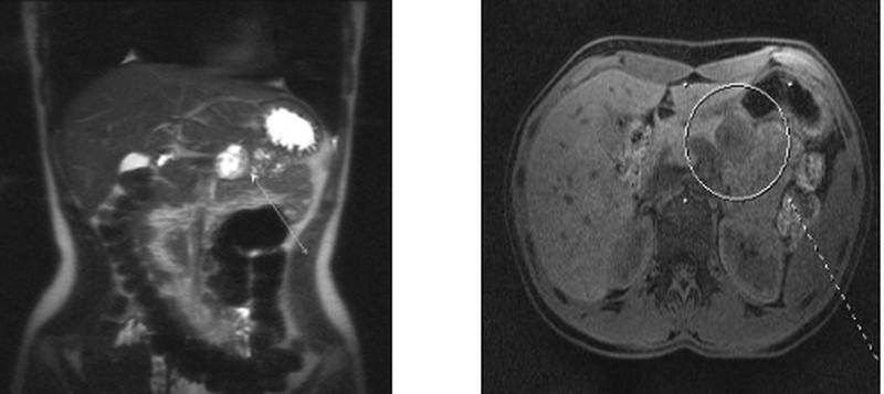 Рак поджелудочной железы на снимке МРТ