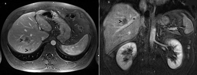Метастатическое поражение печени на снимке МРТ