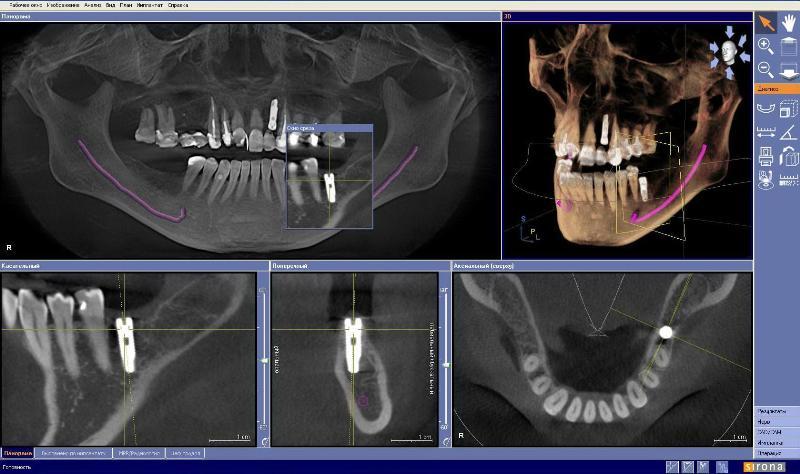kt-v-stomatologii
